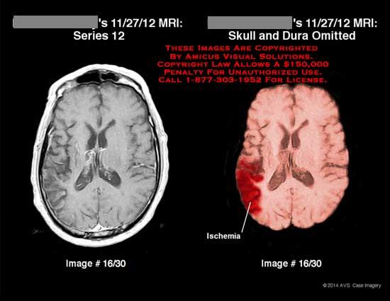 amicus,injury,brain,MRI,skull,dura,ischemia