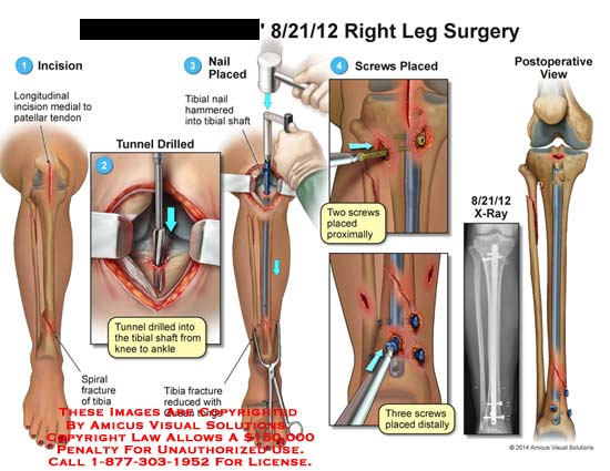 amicus,surgery,leg,bone,oatellar,tendon,drilled,tibial,shaft,knee,ankle,fracture,queen,tong,screw,x-ray