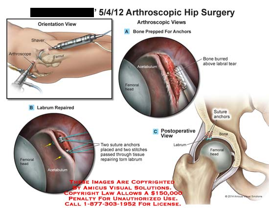 amicus,surgery,arthroscopic,hip,shaver,femur,labrum,repaired,femoral,head,acetabulum,suture,stitches,bone,curred,labral,tear