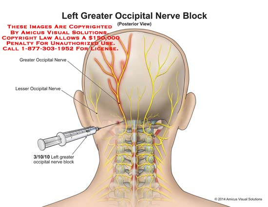 amicus,injury,occipital,greater,nerve,block,skull,brain,lesser,needle,injection,neck,bone