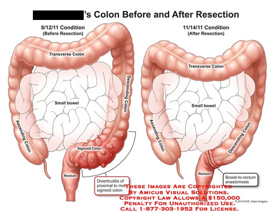 sigmoid colon cancer - klejonka, Human body