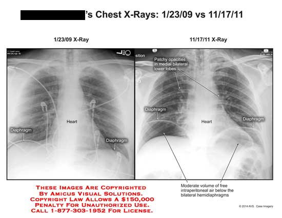 amicus,injury,x-ray,chest,heart,rib,diaphragm,patchy,opacities,bilateral,lobe,free,intraperitoneal,hemidiaphragms