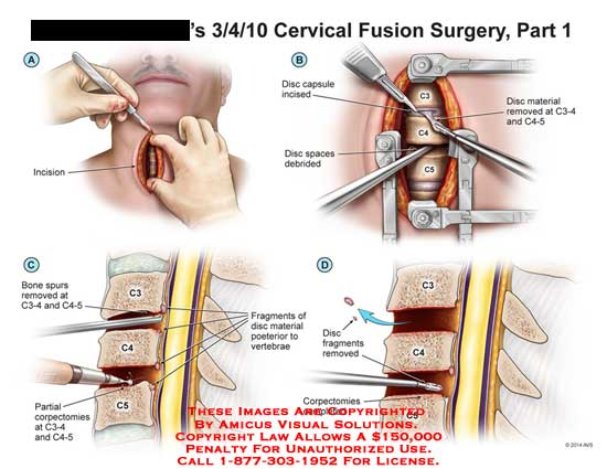 amicus,surgery,cervical,fusion,spine,incision,disc,capsule,incised,debrided,removed,bone,spur,partial,corpectomies,fragments,vertebrae