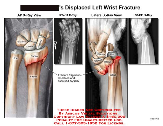 amicus,injury,displaced,wrist,fracture,X-ray,lunate,scaphoid,triquetrium,ulna,radius,fragment,subluxed,dorsally,X-ray