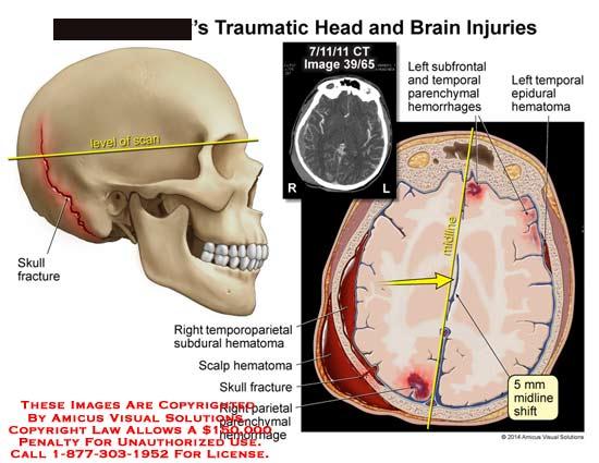 amicus,injury,head,brain,CT,skull,fracture,bone,temporoparietal,subdural,hematoma,hemorrhages,epidural,midline,shift