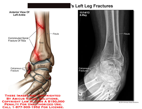 amicus,injury,leg,fractures,bone,fibula,tibia,comminuted,spiral,calcaneus,foot