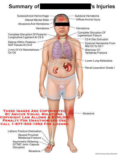 amicus,injury,summary,subarachnoid,hemorrhage,altered,mental,state,abrasions,hematoma,disruption,posterior,longitudinal,ligament,edema,soft,tissues,retrolisthesisC6,lisfranc,fracture,dislocation,proximal,metatarsal,abrasions,renal,grade,I,lung,atelectasis,bilaminar,C7,vertebrae,epidural,C5,C6-7,subdural,diffuse,axonal