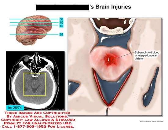 amicus,injury,brain,subarachnoid,blood,interpenduncular,cistern