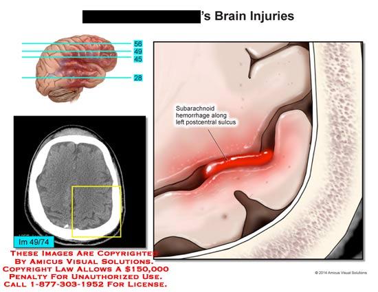 amicus,injury,brain,subarachnoid,hemorrhage,left,postcentral,sulcus