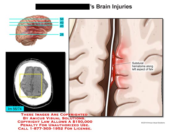 amicus,injury,brain,subdural,hematoma,aspect,falx
