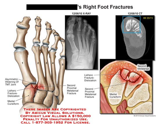 amicus,injury,foot,fracture,bone,TMT,joint,lisfranc,fracture-dislocation,proximal,metatarsal,fracture,medial,cuneiform,CT
