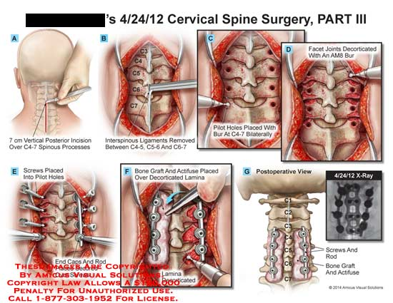 amicus,surgery,cervical,spine,spinal,cord,vertical,posterior,C4-7,spinous,processes,screws,pilot,hole,end,cap,rod,graft,bone,actifuse,decorticated,lamina,ligaments,interspinous,bilaterally,AM8,bur,rod
