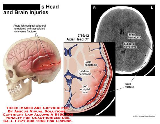 amicus,injury,head,brain,acute,left,occipital,subdural,hematoma,transverse,fracture,subdural,scalp,hematoma,CT
