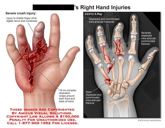 amicus,injury,hand,crush,severe,finger,ulnar,digital,nerve,numbness,laceration,bone