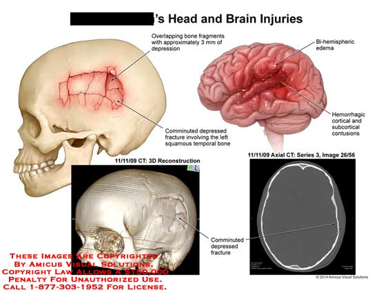 amicus,injury,head,brain,bone,fragments,depression,mm,comminuted,squamous,temporal,CT,3D,hemorrhagic,cortical,subcortical,contusions,bi-demispheric,edema,brain