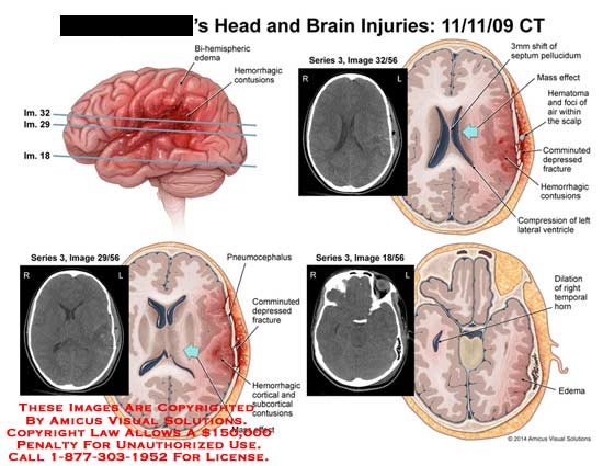 amicus,injury,head,brain,CT,bi-hemispheric,edema,hemorrhagic,contusions,pneumocephalus,comminuted,depressed,fracture,cortical,subcortical,mass,effect,septum,pellucidum,foci,art,scalp,ventricle,dilation,temporal,horn,edema