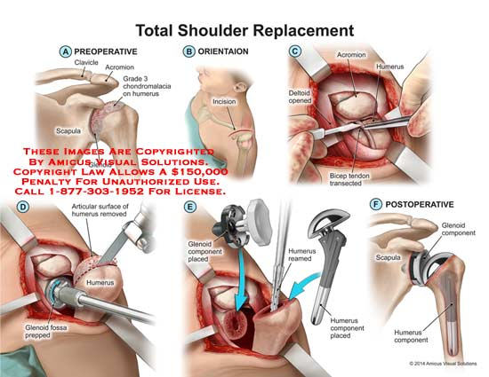 Diagram Of Right Shoulder Replacement Electrical Work Wiring Diagram