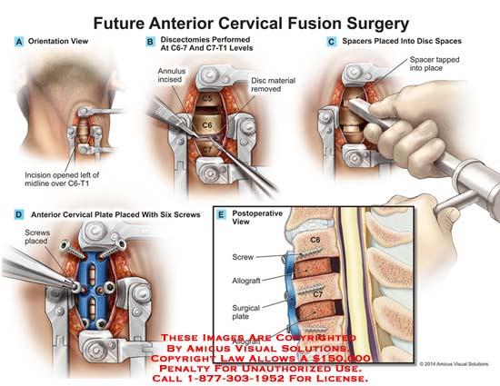 Future Anterior Cervical Fusion Surgery