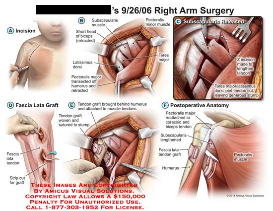 amicus,surgery,arm,short,head,biceps,retracted,subscapularis,latissimus,dorsi,pectoralis,major,transected,humerus,minor,muscle,teres,major,Z,tendon,stump,fascia,lata,graft,woven,sutured,coracoid,lengthened
