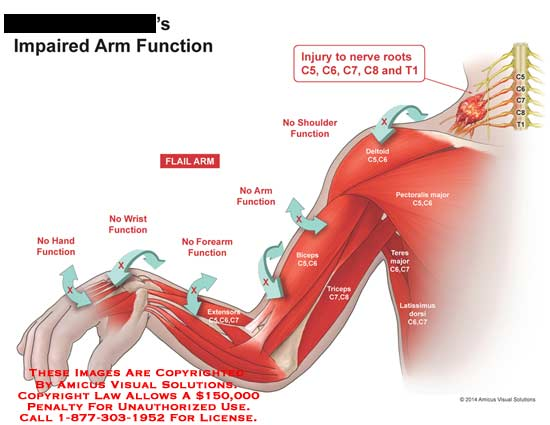 amicus,injury,impaired,arm,function,no,hand,wrist,forearm,extensors,C5,C6,C7,arm,biceps,triceps,nerve,root,deltoid,pectoralis,major,teres,latissimus,dorsi