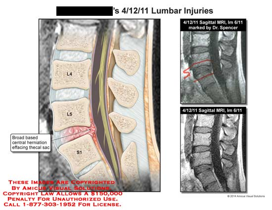 amicus,injury,lumbar,MRI,saggital,spinal,cord,spine,vertebrae,L4,L5,S1,broad,based,central,herniation,effacing,thecal,sac