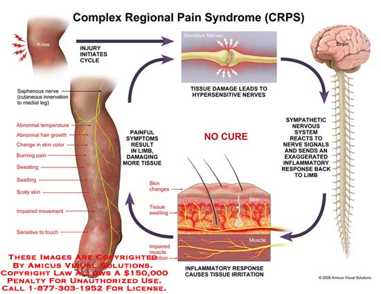 amicus,injury,CRPS,complex,regional,pain,syndrome,knee,cycle,saphenous,nerve,cutaneous,innervation,medial,abnormal,temperature,hair,growth,burning,pain,sweating,swelling,scaly,skin,impaired,movement,sensitive,touch,impaired,inflammatory,irritation,hypersensitive,sympathetic,nervous,system