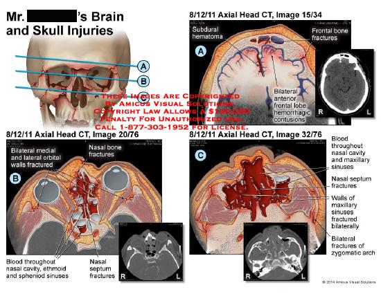 amicus,injury,brain,skull,CT,nasal,bone,fractures,bilateral,medial,lateral,orbital,walls,blood,ethmoid,sphenoid,sinuses,septum,subdural,hematoma,frontal,bone,anterior,frontal,lobe,hemorrhagic,contusions,zygomatic,arch