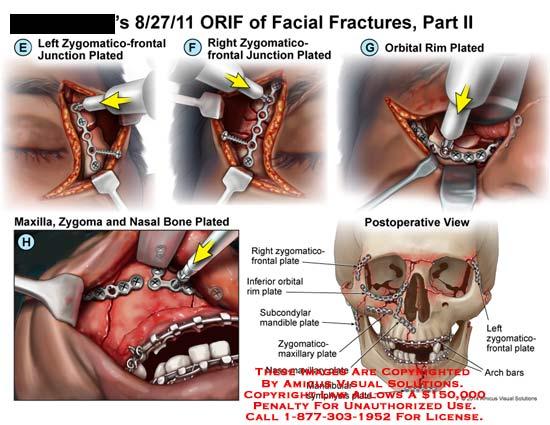 amicus,surgery,ORIF,procedure,facial,fracture,zygomatico-frontal,junction,plated,orbital,rim,plated,maxilla,nasal,bone,postoperative,inferior,subcondylar,mandible,rim,zygomatico-maxillary,naso-maxillary,mandibular,symphysis,arch,bars