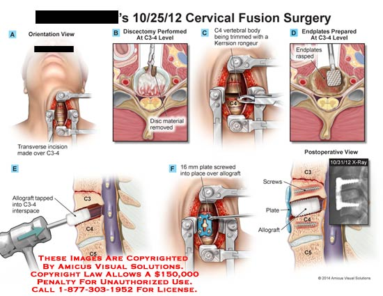 amicus,surgery,cervical,fusion,transverse,incision,C3-4,disc,material,discectomy,C4,vertebral,body,trimmed,kerrison,rongeur,endplates,rasped,allograft,tapped,interspace,C3,C4,C5,16mm,plate,screwed,allorapft,x-ray