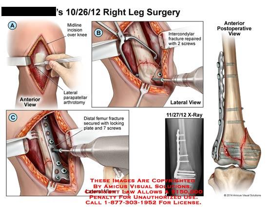 amicus,surgery,leg,bone,midline,incision,lateral,parapatellar,arthrotomy,distal,femur,fracture,screws,plate,intercondylar,x-ray,plate