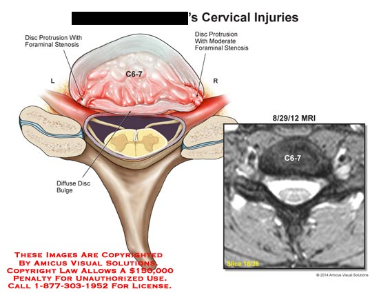 amicus,injury,cervical,spine,spinal,cord,vertebrae,MRI,disc,protrusion,foraminal,stenosis,C6-7,diffuse,disc,moderate
