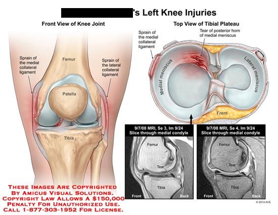 amicus,injury,knee,femur,patella,tibia,fibula,sprain,medial,collateral,ligament,MRI,meniscus,tear,posterior,horn