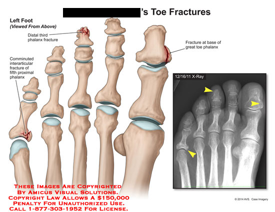 amicus,injury,toe,fractures,distal,third,phalanx,comminuted,interarticular,fith,proximal,phalanx,base,toe,x-ray