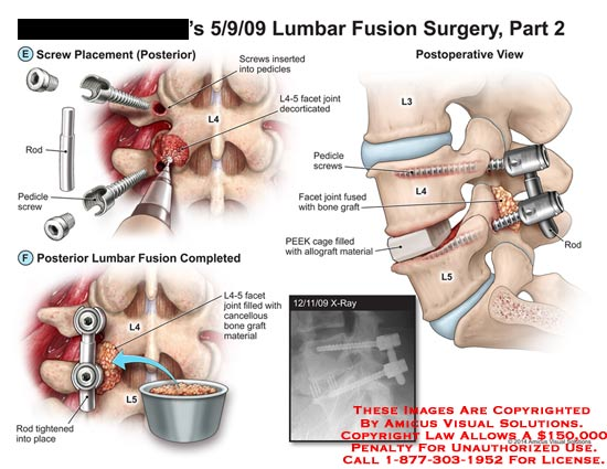 amicus,surgery,lumbar,fusion,screw,L4,rod,pedicle,facet,joint,decorticated,cancellous,bone,graft,material,spine,spinal,cord,bone,L3,L4,L5,PEEK,cage,allograft,x-ray