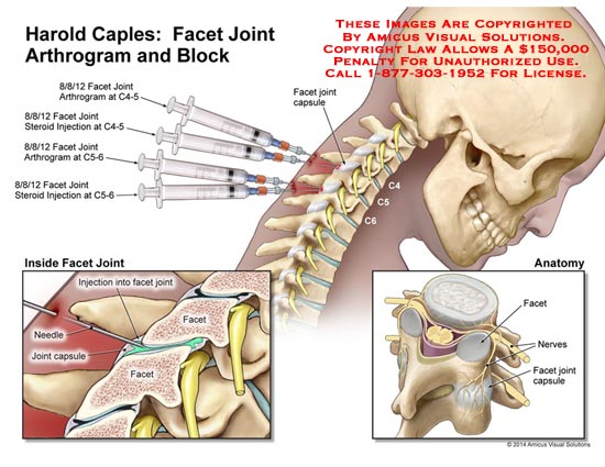 amicus,injection,facet,joint,arthrogram,block,C4-5,C5-6,steroid,needle,capsule,spine,spinal,cord