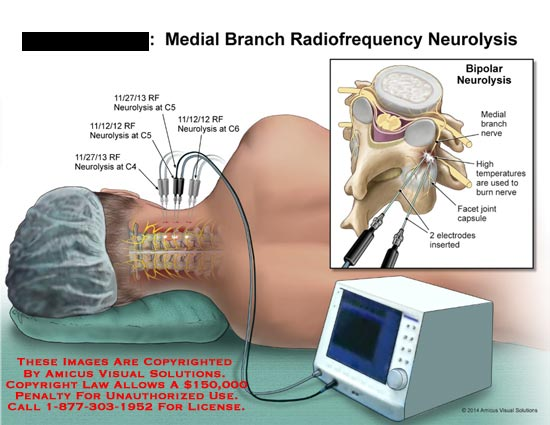 amicus,injection,medial,branch,radiofrequency,neurolysis,nerve,high,temperatures,burn,joint,facet,capsule,electrodes,inserted,C5,C6,C4,spinal,cord,spine