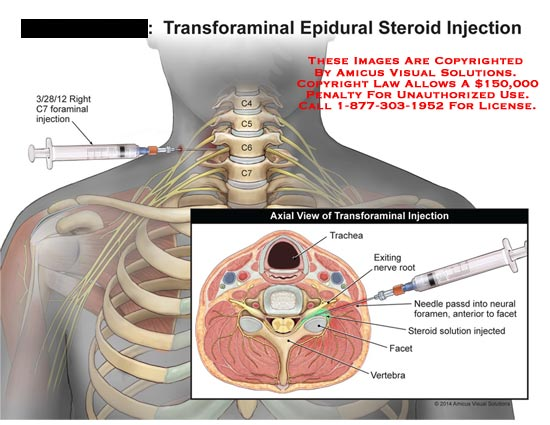 amicus,injection,transforaminal,epidural,steroid,spine,spinal,cord,foraminal,C7,trachea,nerve,root,vertebra,needle,facet,axial
