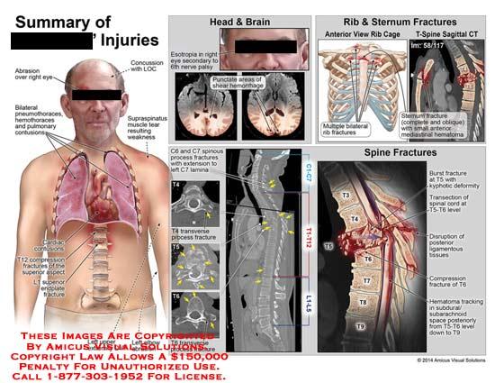 amicus,summary,injury,abrasion,eye,concussion,LOC,bilateral,pneumothoraces,pulmonary,contusions,supraspinatus,muscle,tear,weakness,cardiac,T12,compression,fracture,superior,aspect,L1,endplate,esotropia,6th,nerve,hemorrhage,rib,sternum,cage,oblique,mediastinal,hematoma,C6,C7,lamina,burst,kyphotic,deformity,ligamentous,compression,hematoma,subarachnoid,T5-T6,T9