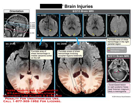 amicus,injury,brain,MRI,skull,punctate,area,shear,hemorrhage,medial,calcrine,cortex,occipital,regions,bilaterallydural-based,dural,based,fossa,magnum,meningioma