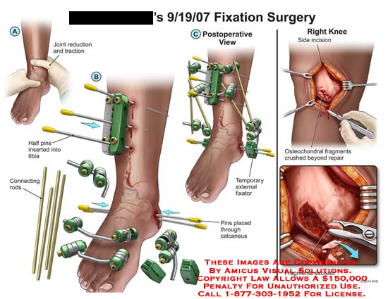 amicus,surgery,fixation,leg,bone,reduction,joint,traction,half,pins,tibia,connecting,rods,calcaneus,external,fixator,incision,osteochondral,fragments,crushed,excised