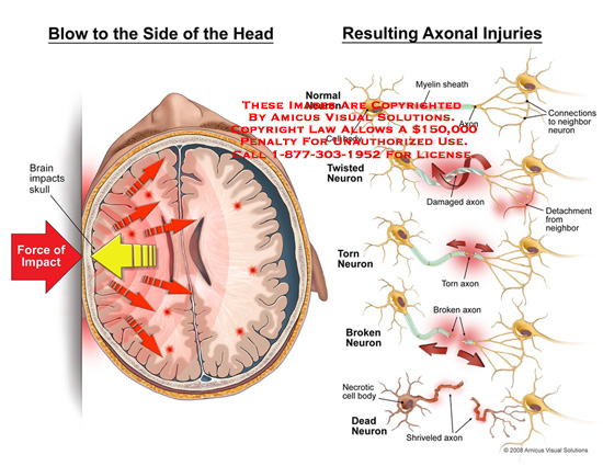 amicus,injury,blow,head,side,brain,impacts,force,neuron,myelin,sheath,axon,connections,neighbor,detachment,twisted,torn,broken,dead,cell,body