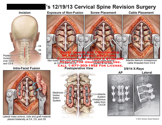 amicus,surgery,cervical,spine,posterior,C4-5,C5-6,non-fused,joints,screw,placement,cable,atlantis,titanium,intraspinous,cable,intra-facet,rods,graft,bilaterally,medtronic,vertex,select,system,atlantis,AP