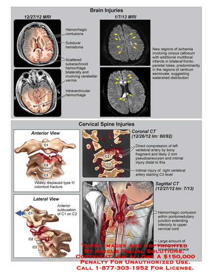 amicus,injury,fracture,cervical,spine,anterior,lateral,subluxation,C1,C2,C3,widely,displaced,type,III,odontoid,transverse,foramen,arteries,brain,compression,vertebral,artery,pseudoaneurysm,distal,coronal,CT