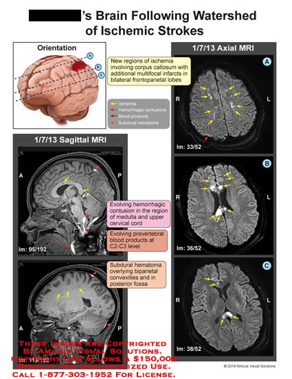amicus,brain,ischemic,strokes,watershed,ischemia,corpus,callosum,multifocal,infarcts,bilateral,frontoparietal,lobes,blood,subdural,hematoma,MRI,contusion,medulla,cervical,cord,prevertebral,c2,c3,convexities,fossa,