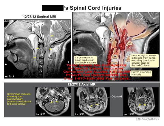 amicus,injury,spinal,cord,MRI,hemorrhagic,contusion,pontomedullary,junction,cervical,cord,mid,C2,blood,prevertebral,space,edema,MRI