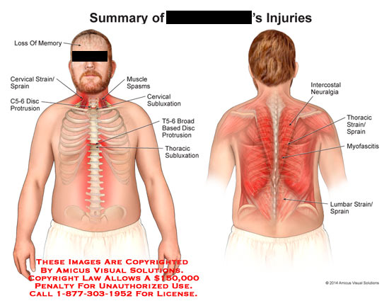 amicus,injury,summar,loss,memory,cervical,strain,sprain,C5-6,disc,protrusion,muscle,spasms,subluxation,T5-6,broad,thoacic,intercoastal,neuralgia,myofascitis,lumbar