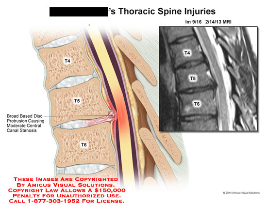 amicus,injury,thoracic,spine,MRI,bone,spinal,cord,T4,T5,T6,broad,based,disc,protrusion,moderate,central,canal,stenosis,