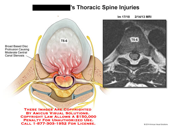 amicus,injury,thoracic,spine,T5-6,broad,based,disc,protrusion,moderate,central,canal,stenosis,MRI,bone