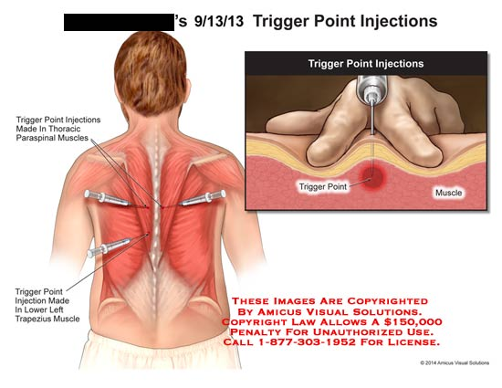 amicus,injection,trigger,point,injections,thoracic,paraspinal,muscles,trapezius,muscle