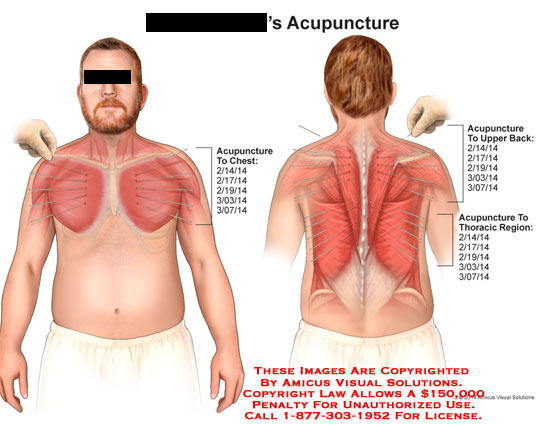 amicus,injection,acupuncture,chest,upper,back,thoracic,region,muscle,needle